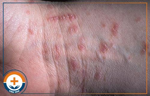 Bệnh ghẻ - Nguyên nhân, dấu hiệu và cách điều trị
