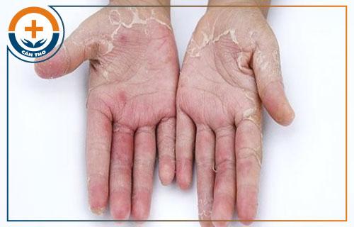 Bệnh tróc da là dấu hiệu của bệnh gì?