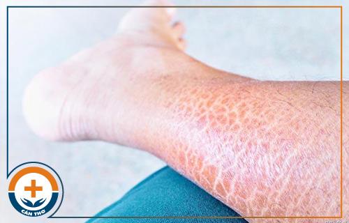 Triệu chứng, nguyên nhân gây bệnh vảy cá và cách điều trị