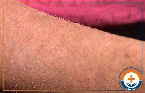 Bệnh dày sừng nang lông là gì? Nguyên nhân và cách chữa hiệu quả