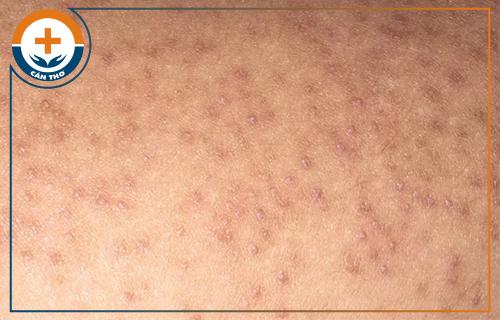 Dấu hiệu của bệnh dày sừng nang lông và phương pháp điều trị hiệu quả