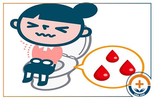 Đi cầu phân lẫn máu là bệnh gì?