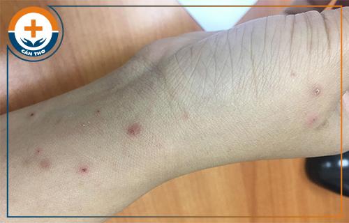 Ghẻ ruồi – Dấu hiệu, nguyên nhân và tác hại của bệnh