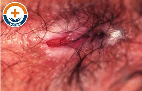 Đi ngoài ra chất nhầy màu đỏ là bệnh gì?