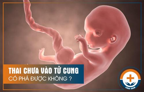 Thai chưa vào tử cung phá được không?