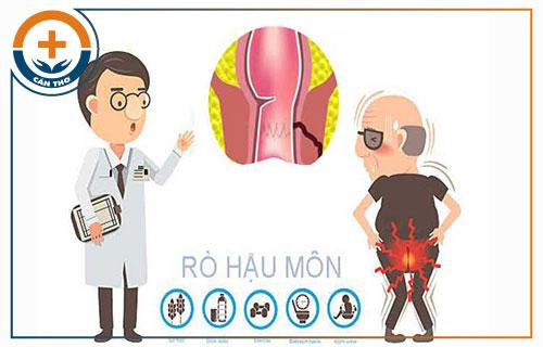 Quy trình phẫu thuật rò hậu môn