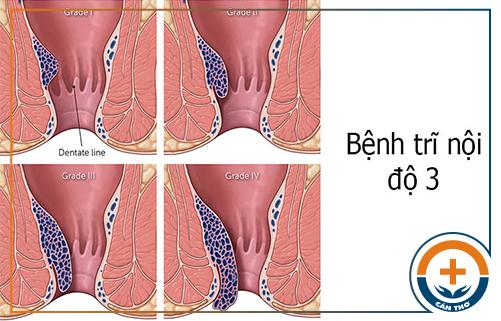 Bệnh trĩ nội độ 3 có cần phẫu thuật không?