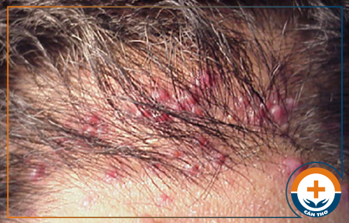 Biểu hiện của viêm nang tóc và cách trị hiệu quả